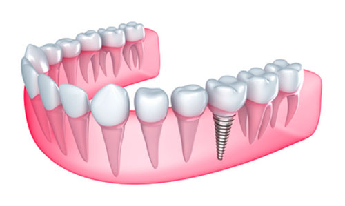 Benefits of Getting a Single Tooth Dental Implant